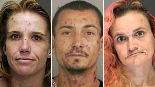 Изменения внешности наркомана